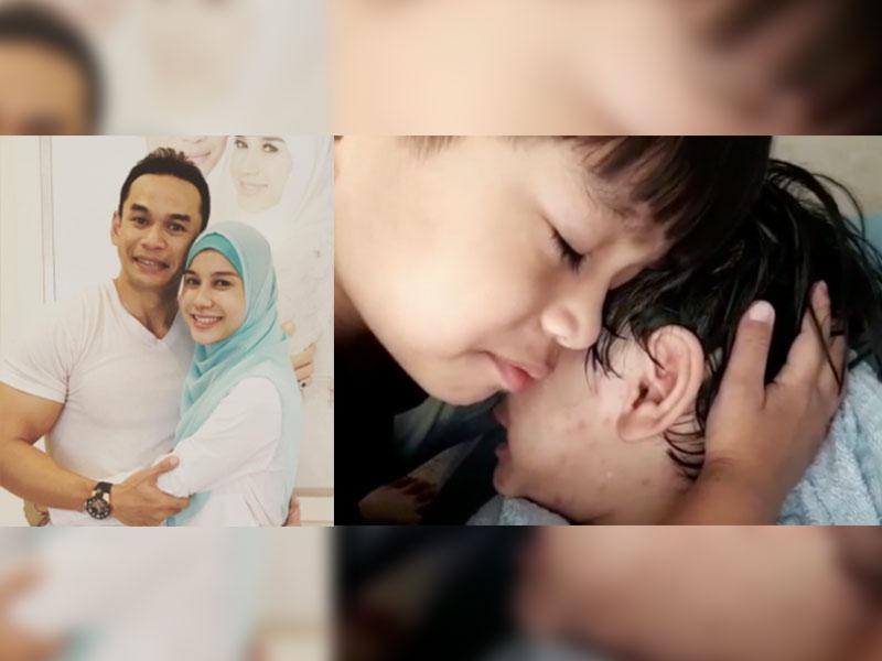Anak Norman Hakim Dan Memey Kena Demam Campak, Peminat Bagi Petua