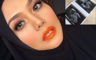 'Ini Bukan Scan Baby Yaa..' – Zulin Aziz Kongsi Gambar Scan Perut, Beritahu Ada Ketumbuhan