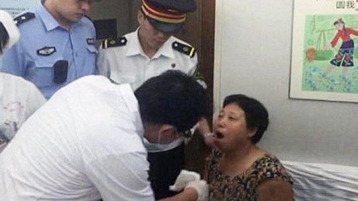 Gelak Terlalu Banyak, Wanita Terpaksa Tahan Sakit Akibat 'Jaw Lock'!